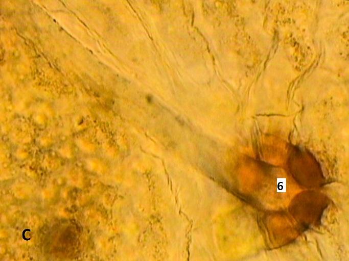 D:\compu\Articol Anatomie\VornicogloM\lincoln logan\Безымянный экспорт\X 40x(7)sup1.jpg