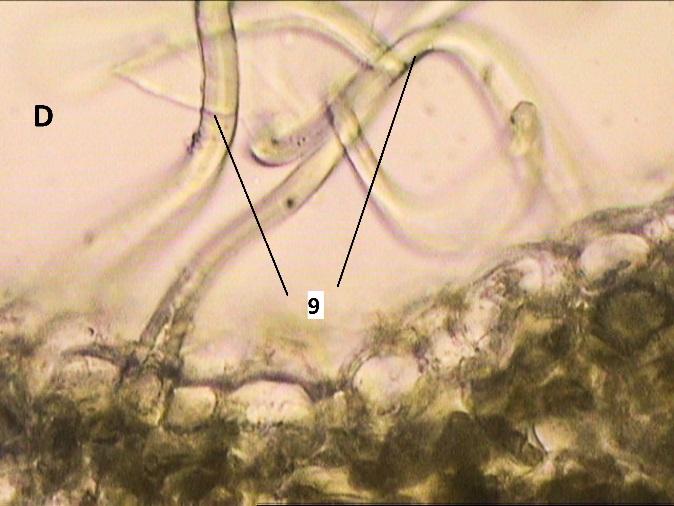 D:\compu\Articol Anatomie\VornicogloM\tayberry buckingham\Безымянный экспорт\40x(1)trans1.jpg