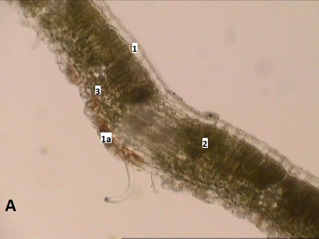 D:\compu\Articol Anatomie\VornicogloM\tayberry medana\10x(2) trans1.jpg