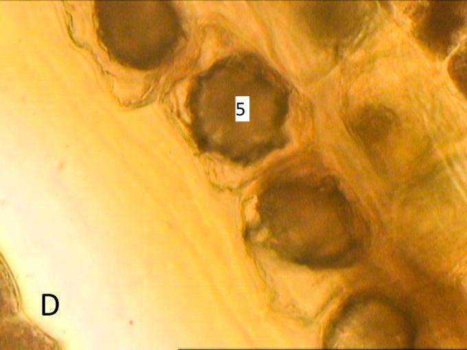 F:\compu\Articol Anatomie\VornicogloM\logan\Untitled Export\40x(4)inf1.jpg